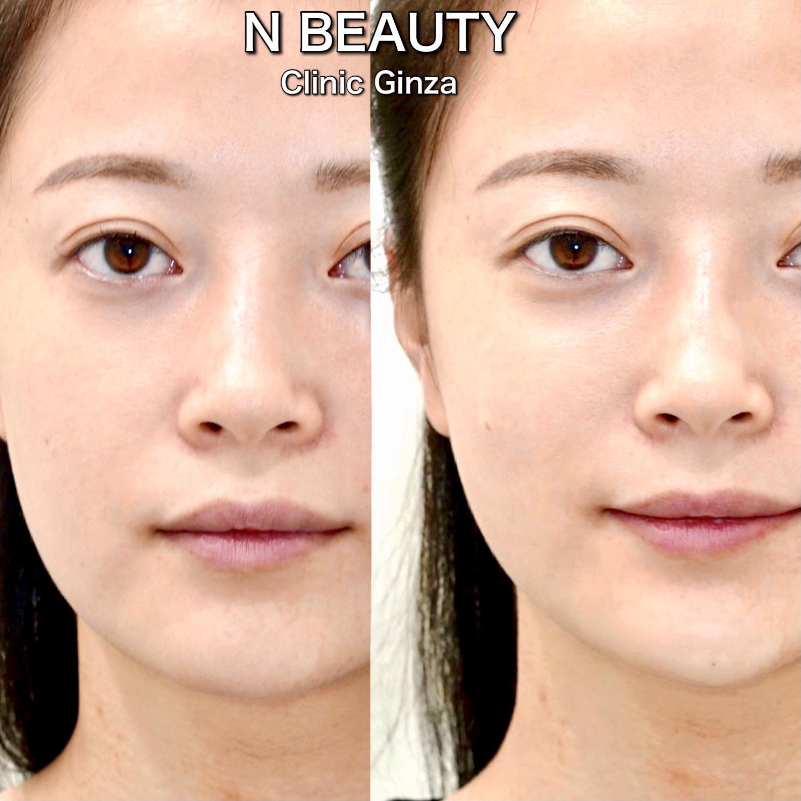ゴルゴライン、顎、鼻根のヒアルロン酸注入の症例