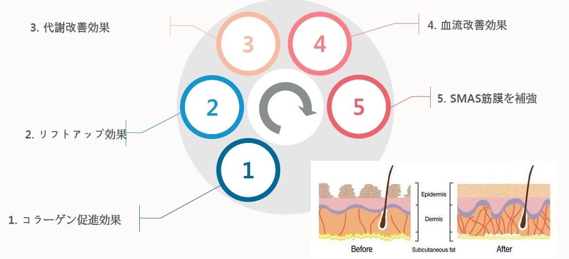 糸リフト(NBリフト)の様々な効果