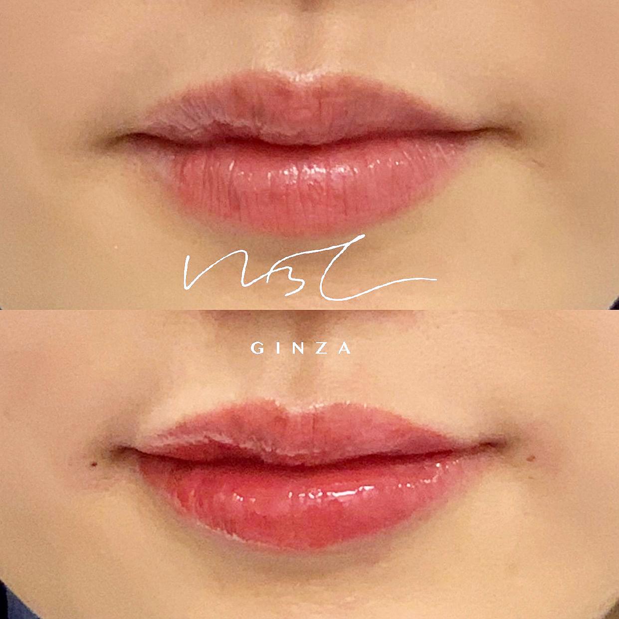 唇のヒアルロン酸注入の症例