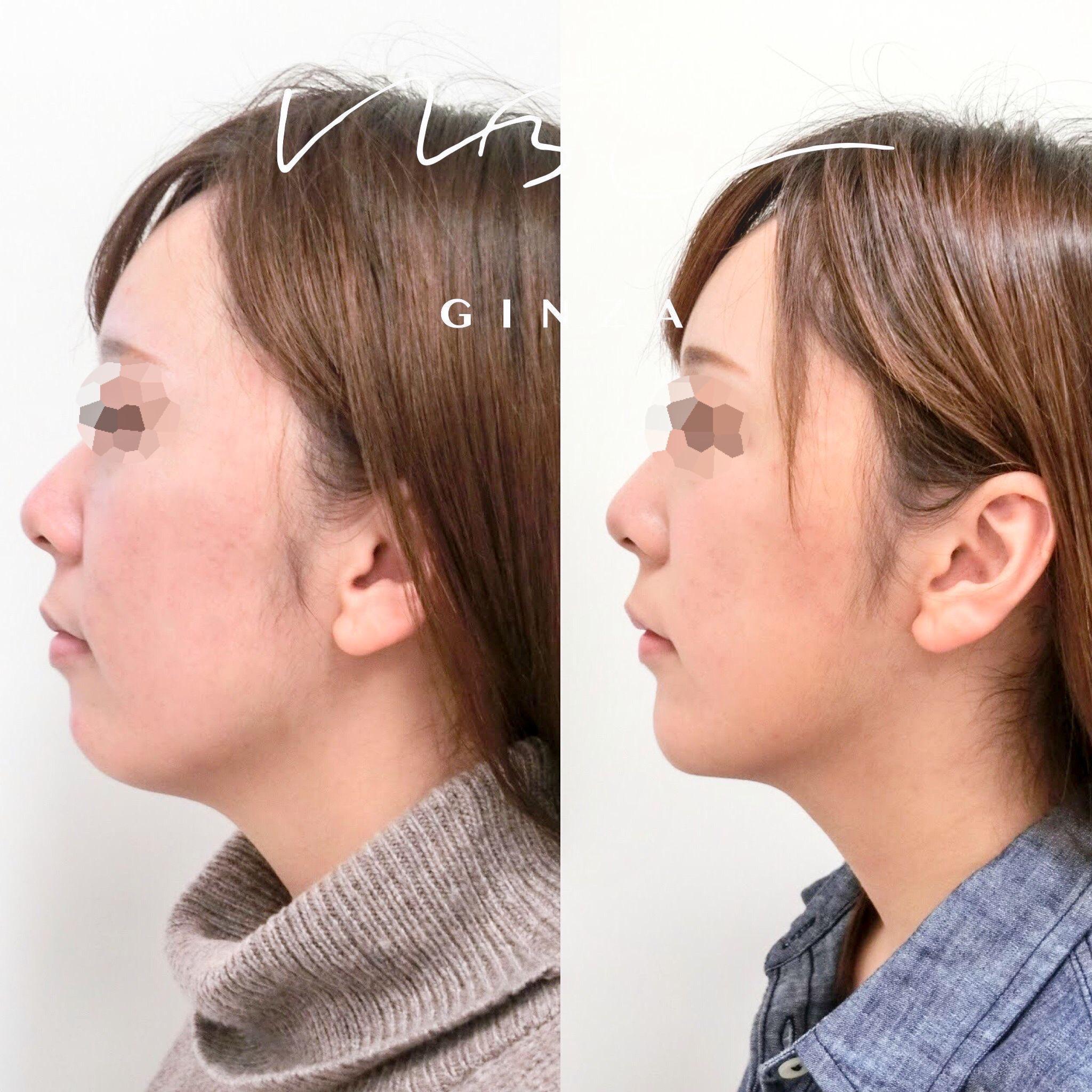 顎のヒアルロン酸注入の症例