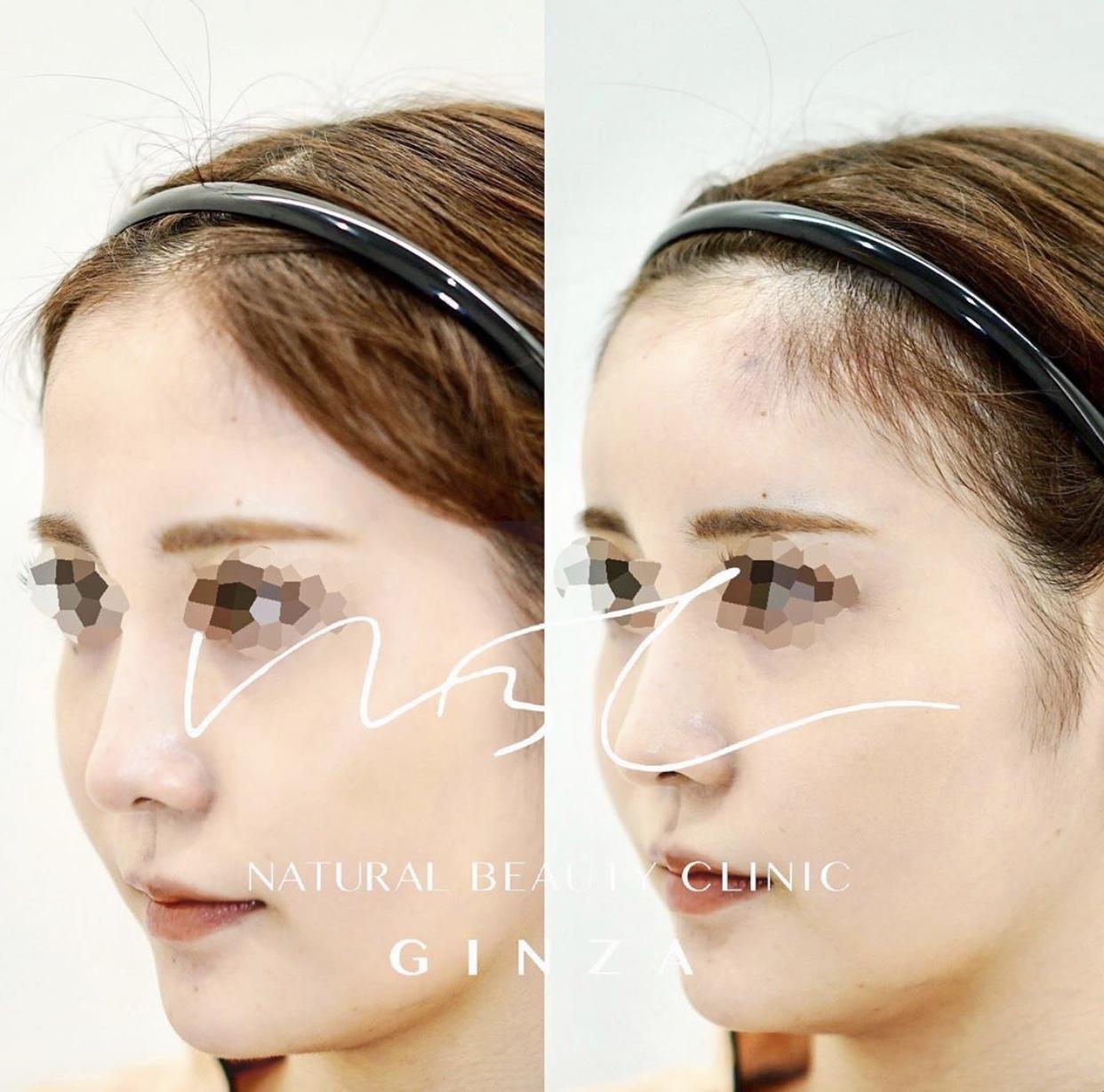 額のヒアルロン酸注入の症例