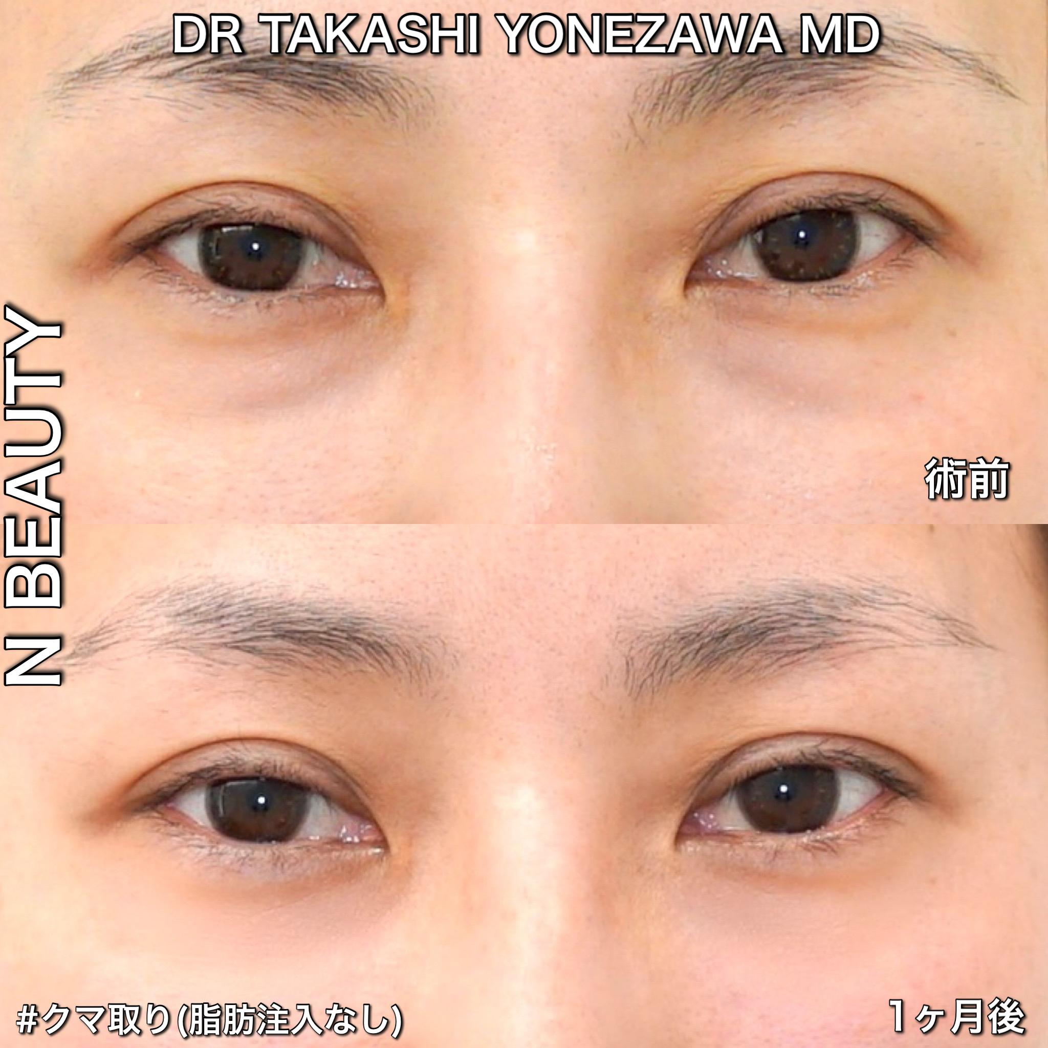 目の下のクマ取り(経結膜脱脂術)の症例
