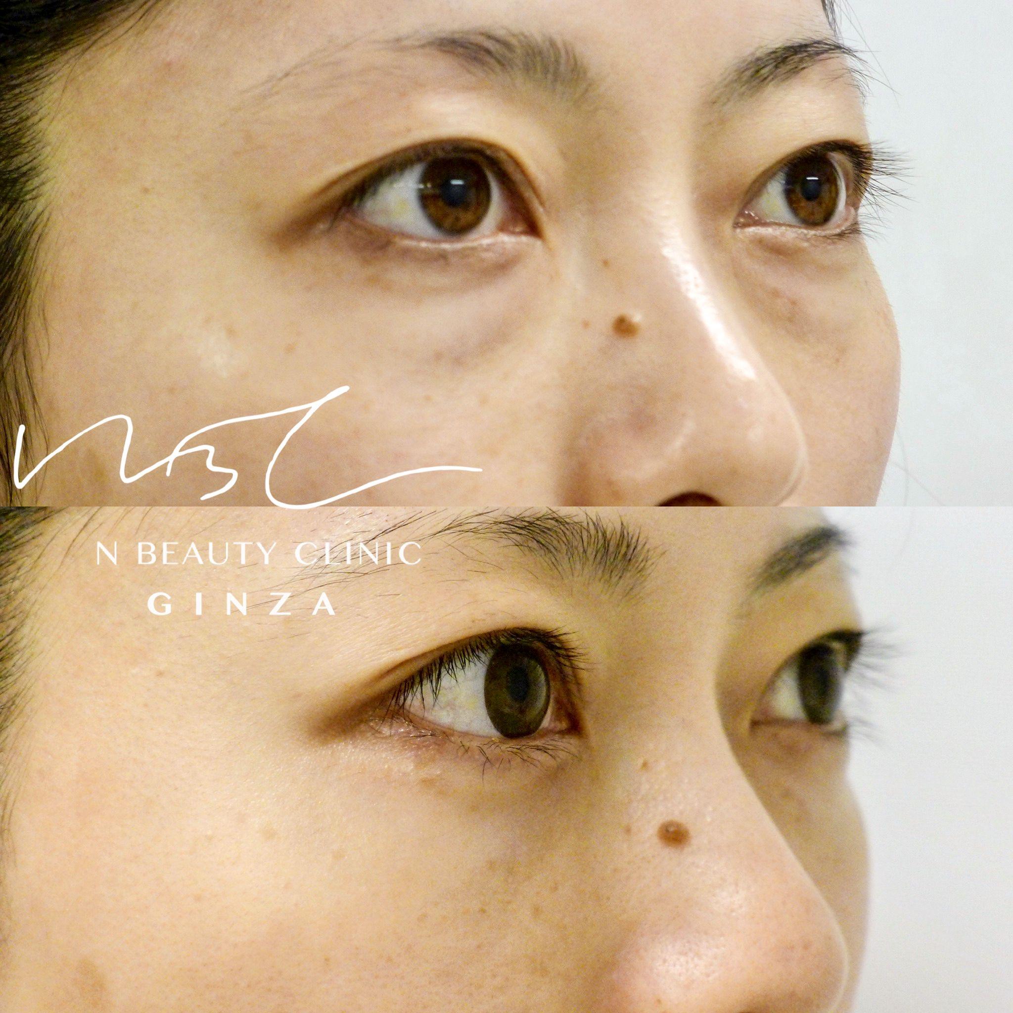 目の下のふくらみ取り(経結膜脱脂術)の症例