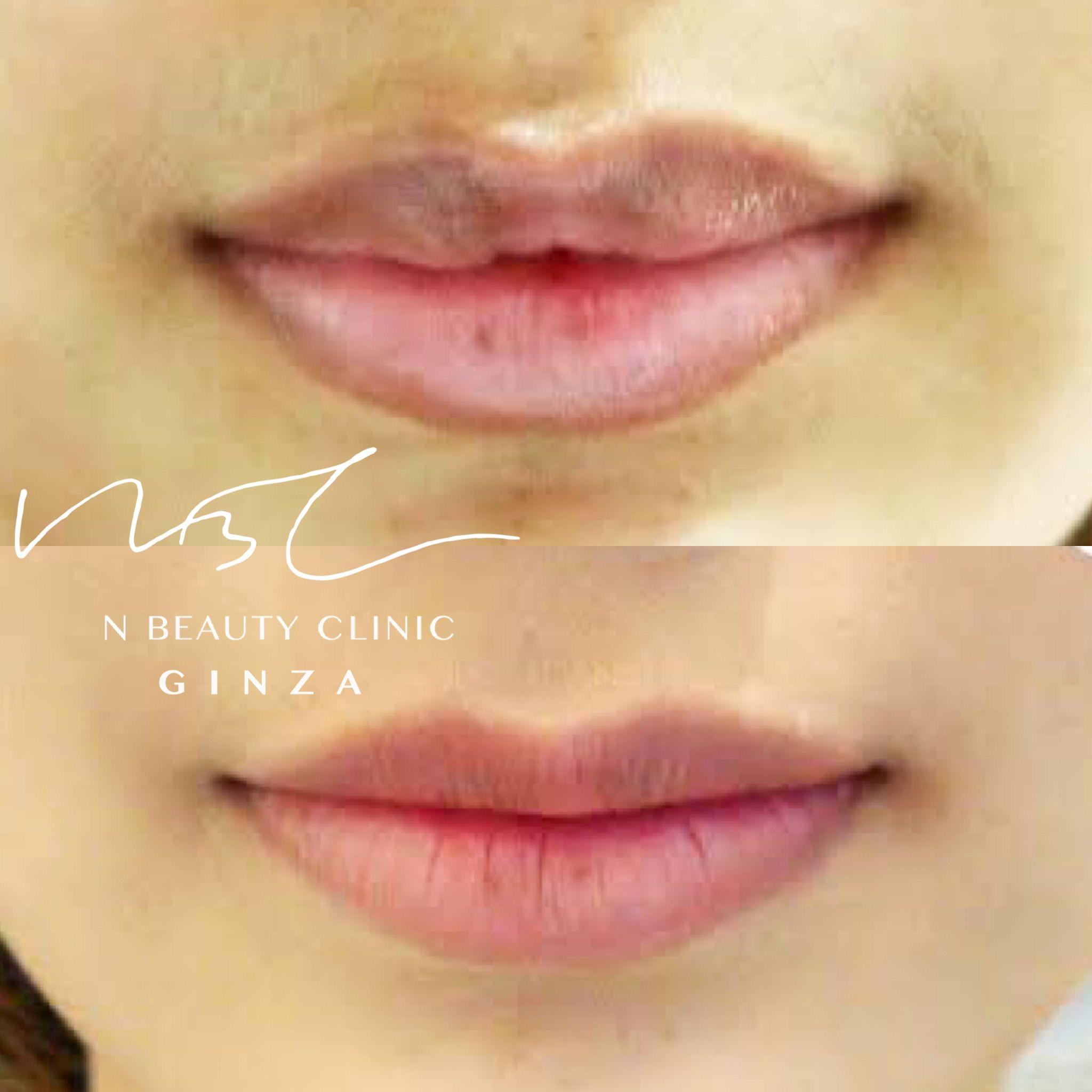 口唇縮小術の症例