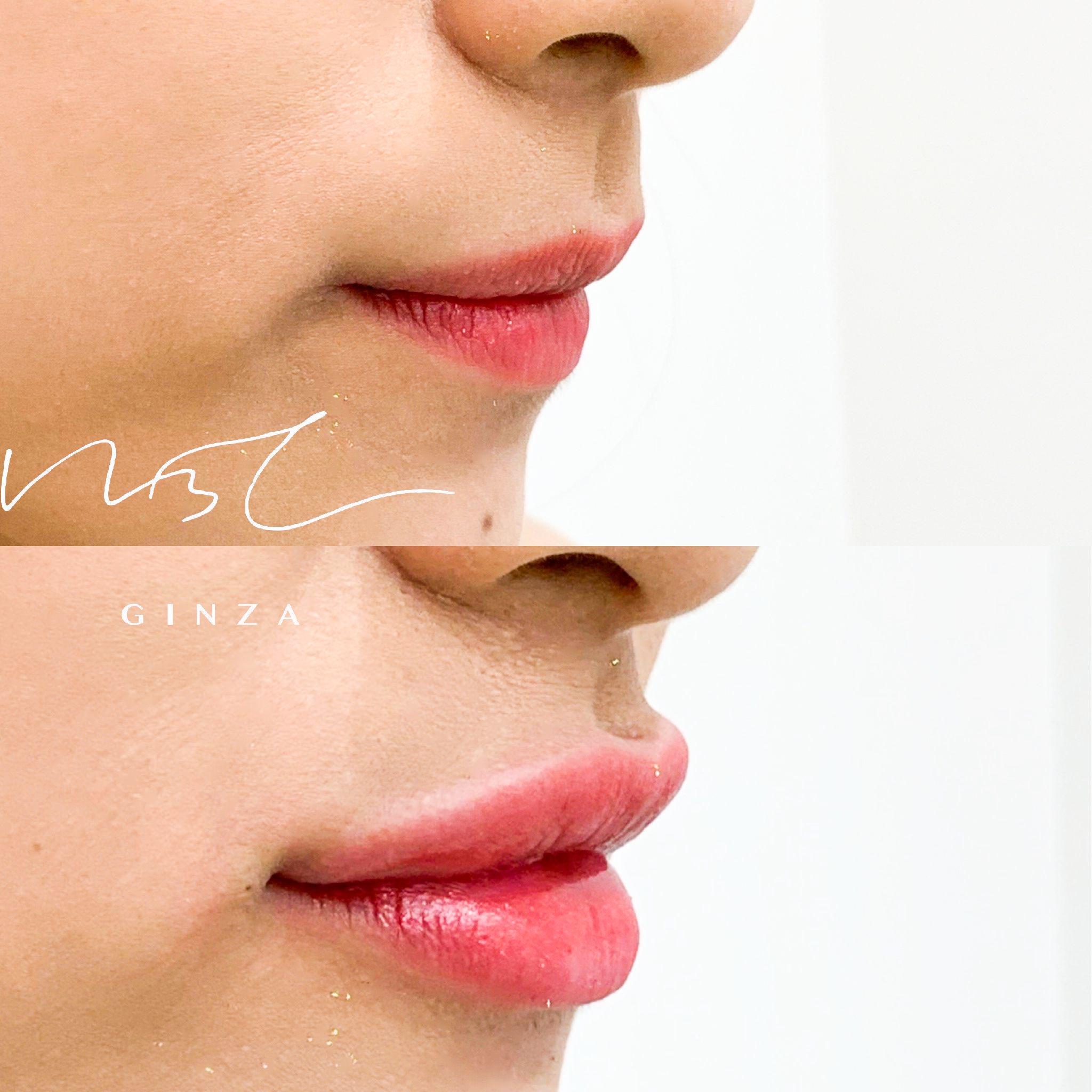 唇のヒアルロン酸の症例