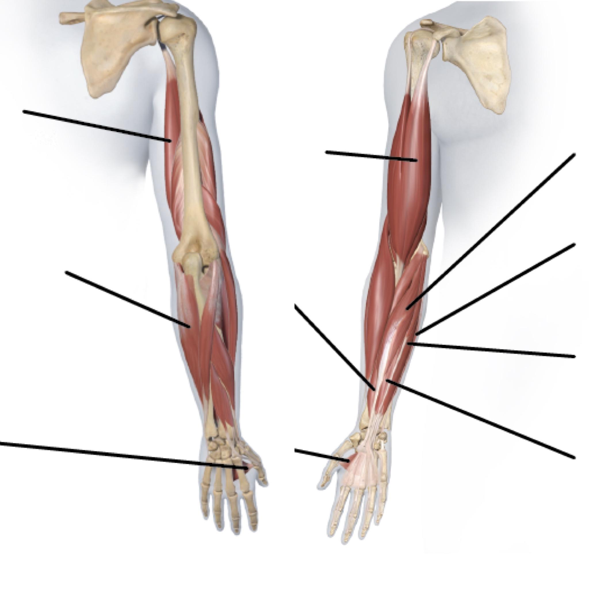 肩ボトックス注射の症例写真