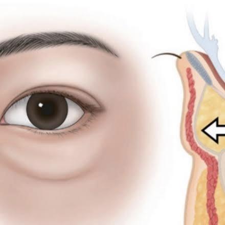 下眼瞼脱脂術の写真
