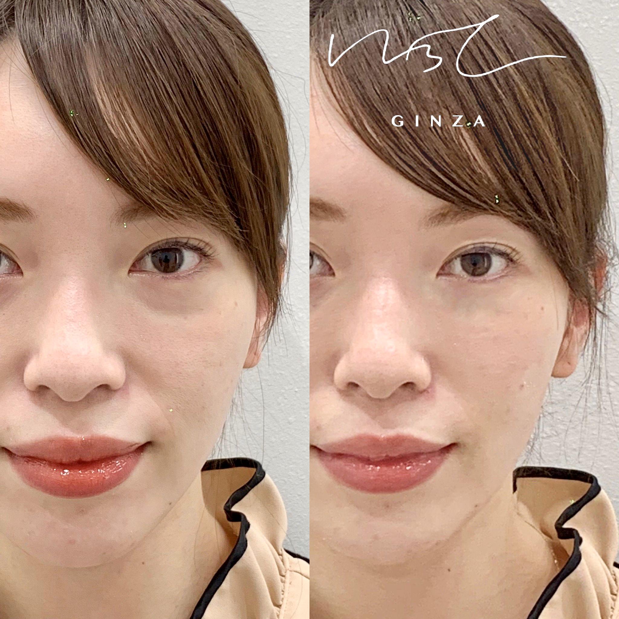 頬のヒアルロン酸の症例