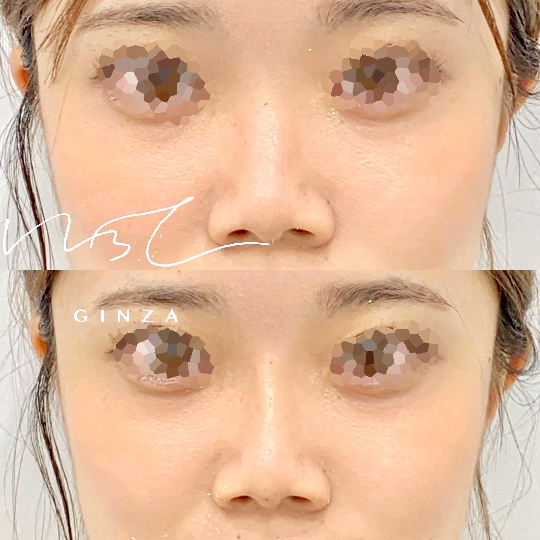 鼻のヒアルロン酸の症例