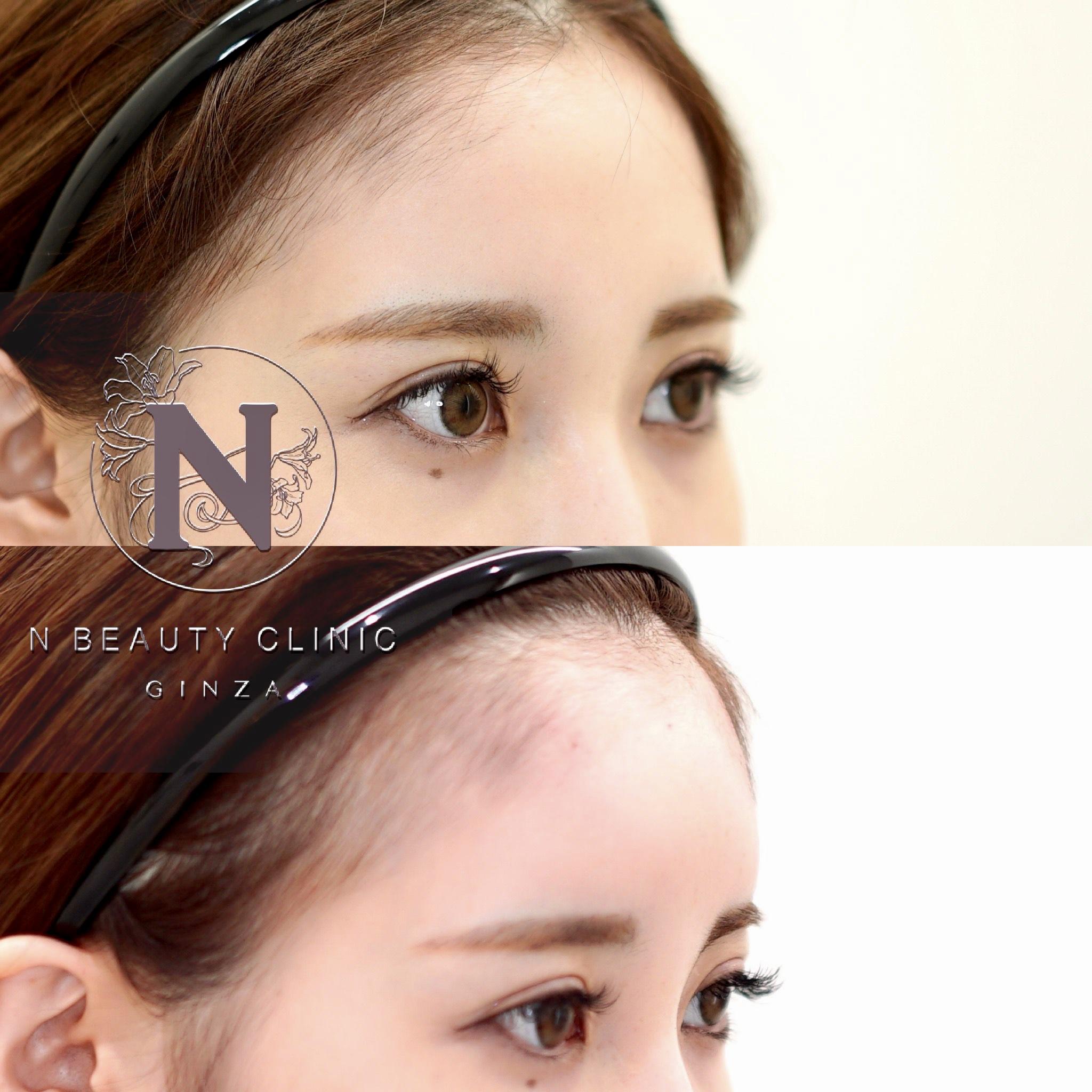 額のヒアルロン酸の症例