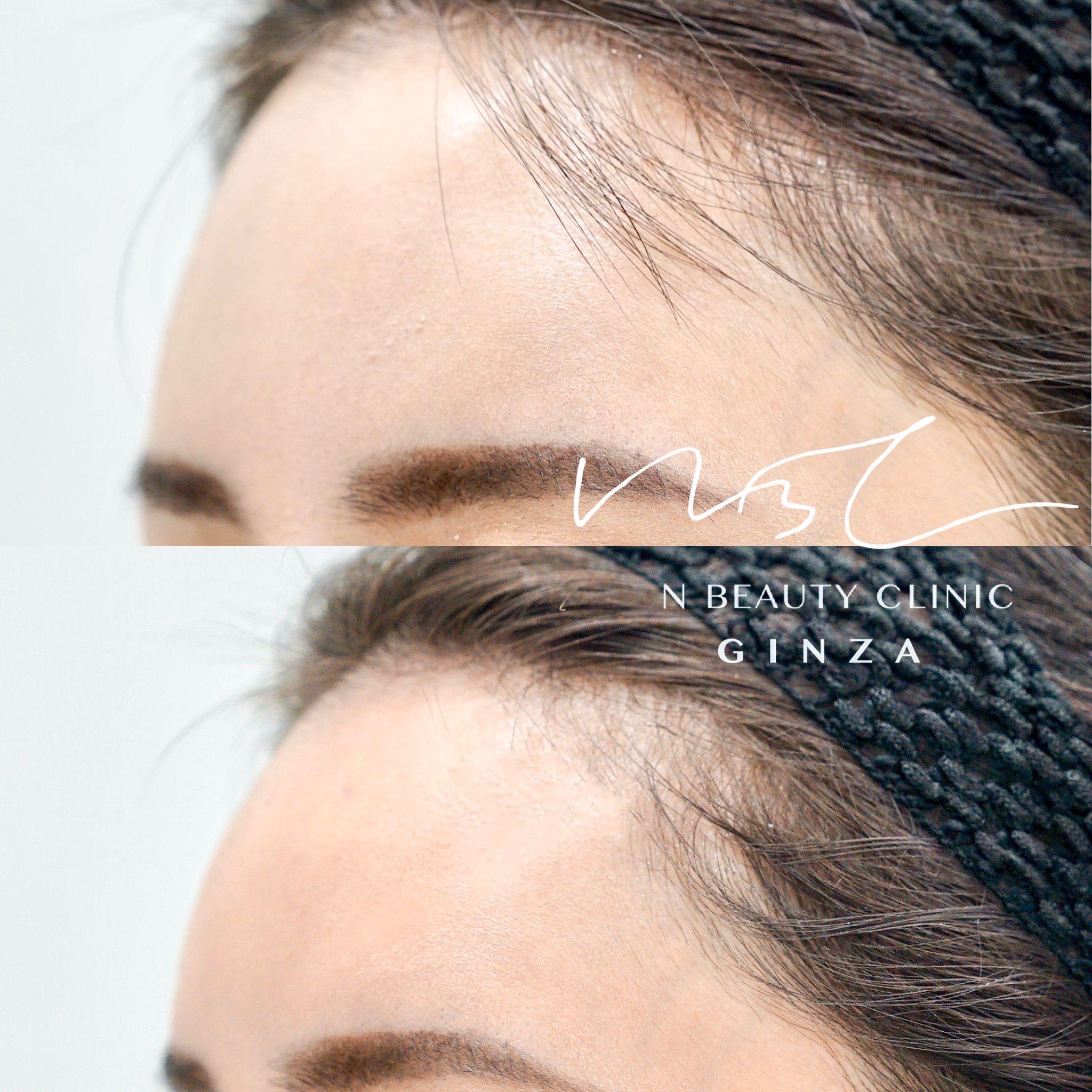 額のヒアルロン酸注入の症例写真